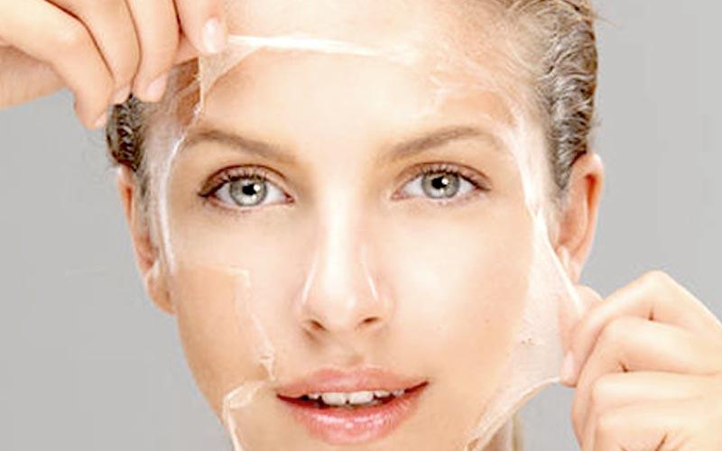 Kimyasal Peeling - Dr. Deniz Klinik